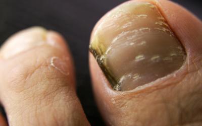Körmökön látható a súlyos betegségek jelei