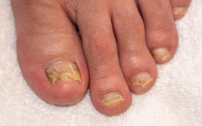 Sárga körmök kezeiden, vagy a lábakon! Tudod miért?